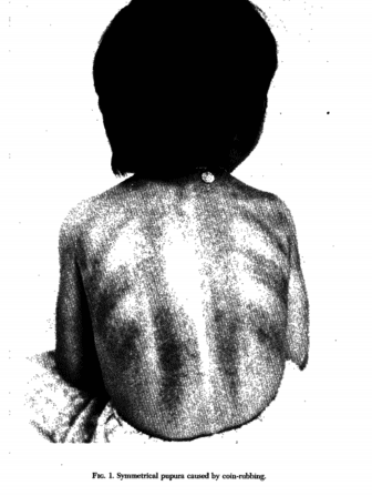 A picture of skin marks from coining appeared in the journal Pediatrics in October 1976 in a letter by three Army doctors and a civilian doctor. Photo by Maj. Gentry W. Yeatman et al.